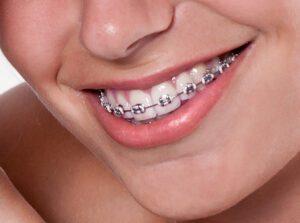 Smukt-smil--intext_5