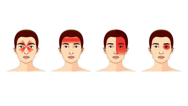 Almindelige typer hovedpine
